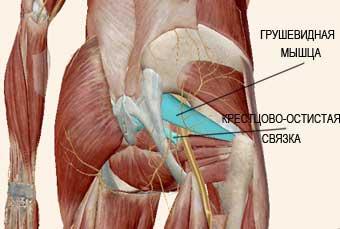 Спазм анальных мышц